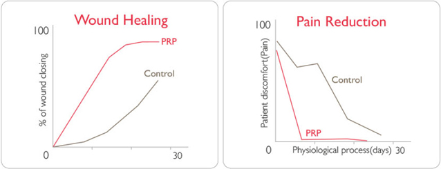 Wound healing and pain relief effects of PRP